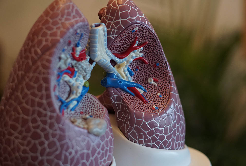 What is COPD and How Can it Be Successfully Managed?