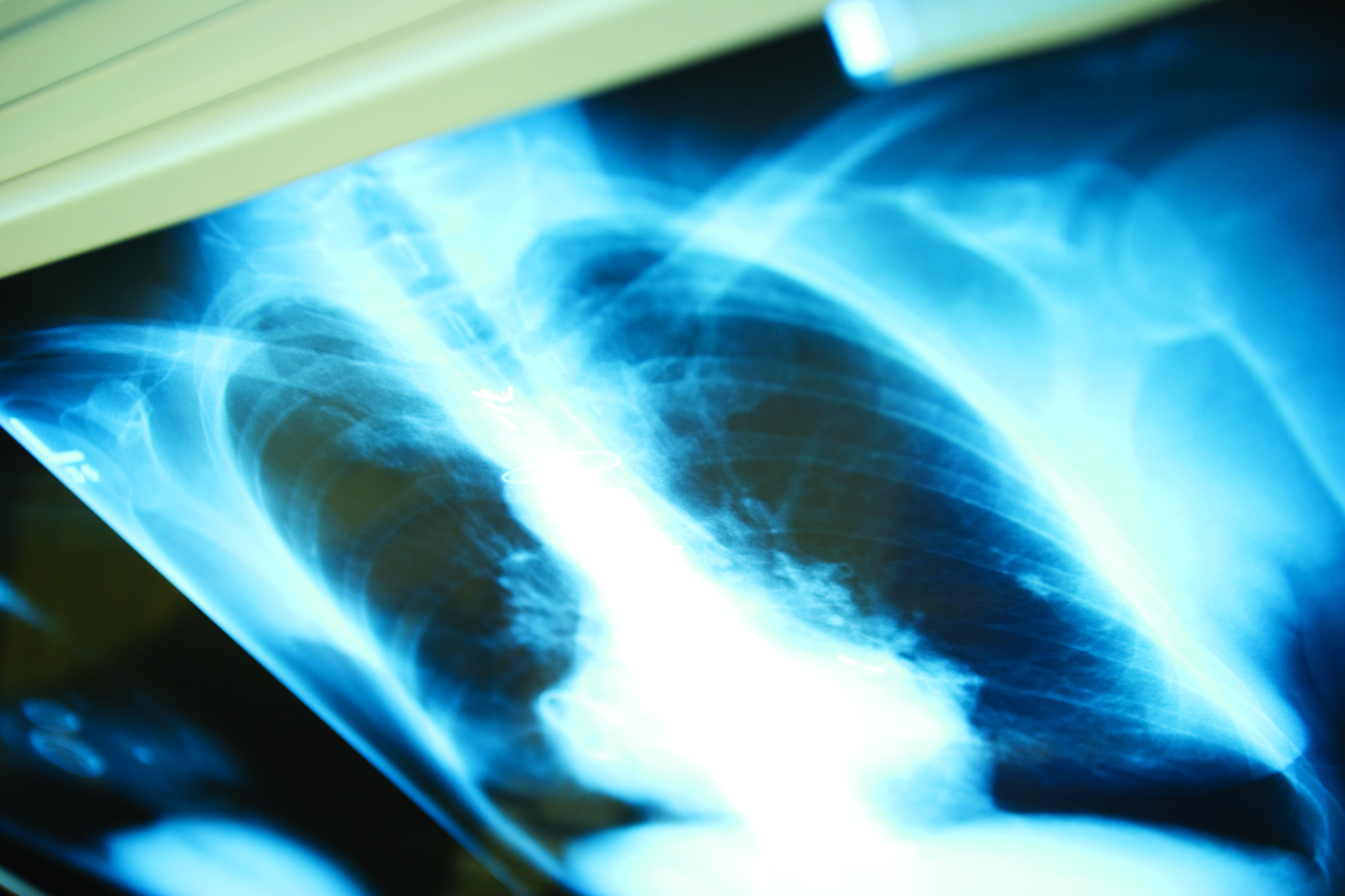 Pulmonology Division to Treat Lung Disease and Sleep Disorders